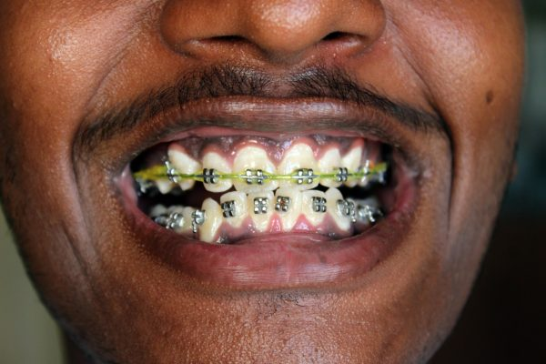 Patient Education Schubbs Dental