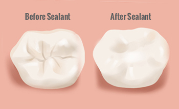 Image shows a tooth before and after pit and fissure sealants therapy
