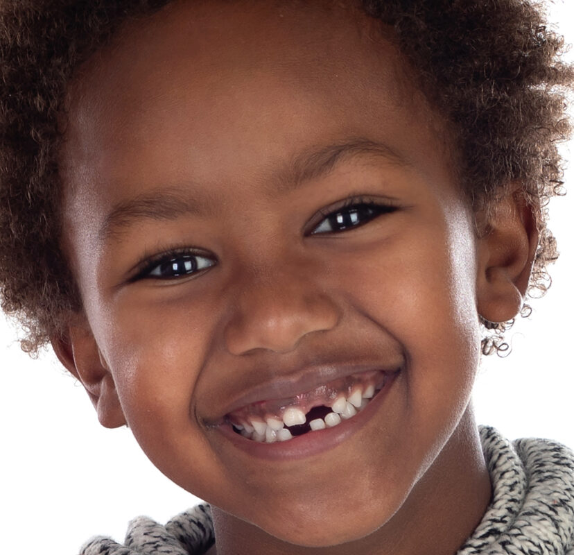 DENTAL INJURIES IN CHILDREN : Image showing missing teeth in a happy African child