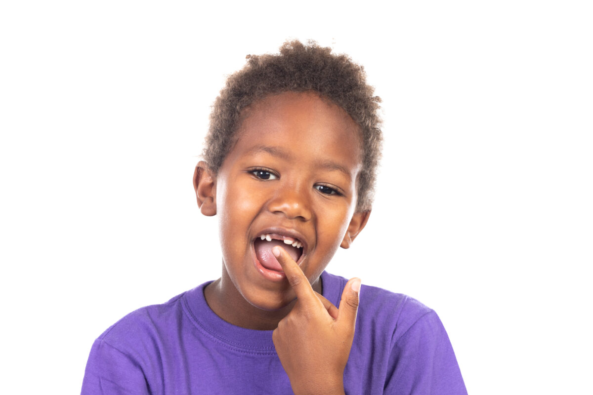 Traumatic dental injuries : Image showing an African child showing his new teeth
