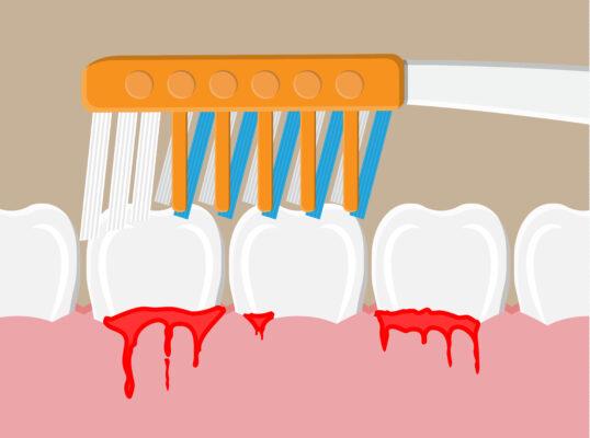 BLEEDING GUMS - An illustration of a toothbrush on bleeding gums