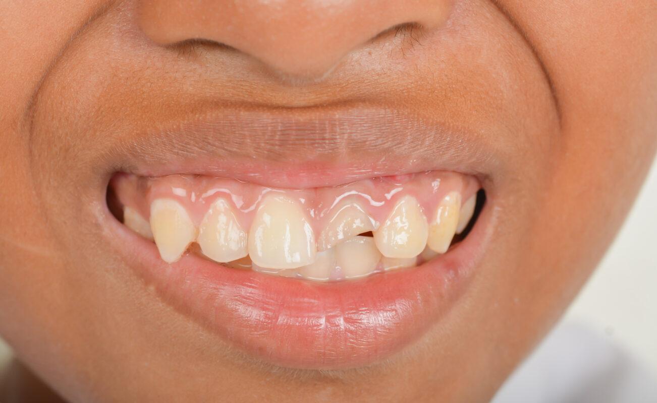DENTAL INJURIES IN CHILDREN : Image showing broken teeth in an African child