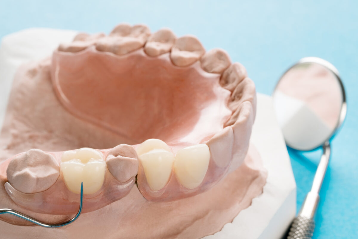 Removable dentures : Image showing an acrylic denture on a jaw model/cast