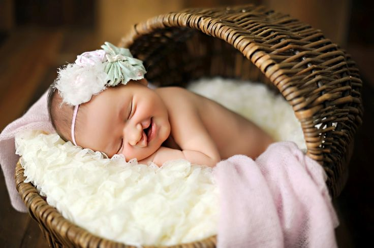 CLEFT LIP AND PALATE : Image showing a happy sleeping baby with a cleft lip