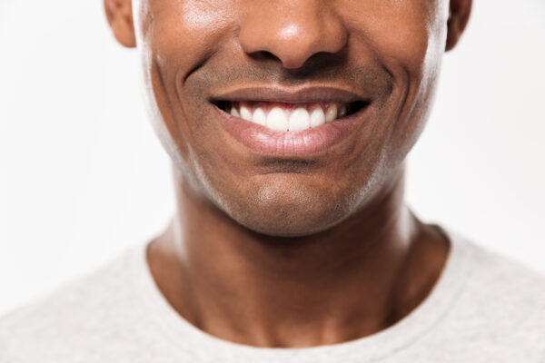 Preventive dental care : Image showing a smiling African young man