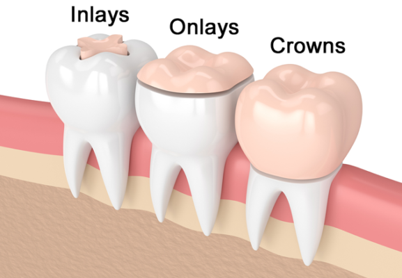 Dental inlays and onlays : Image illustrating dental inlays, dental onlays and dental crowns