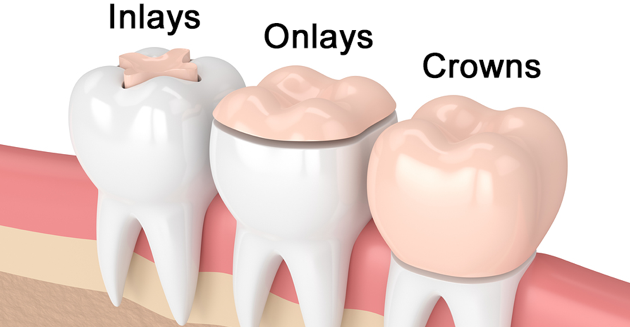 Dental inlays and onlays : Image illustrating dental inlays, dental onlays and dental crowns