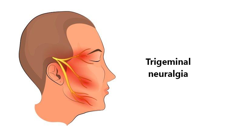 Trigeminal Neuralgia - Image showing the Trigeminal nerve