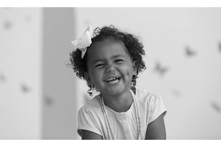 CLEFT LIP AND PALATE : Image showing a happy child with a repaired cleft lip