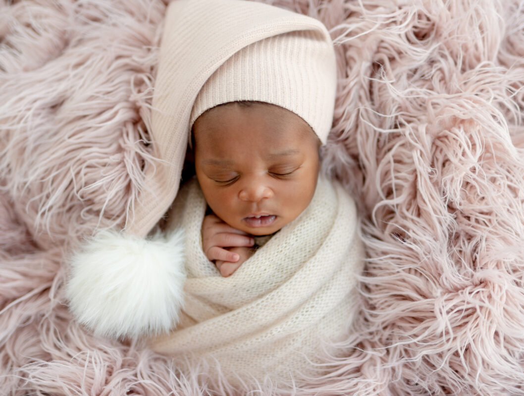 CLEFT LIP AND PALATE : Image showing a happy sleeping baby in a hat
